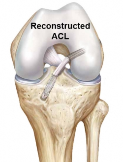 acl revision surgery after