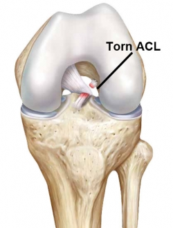 before acl reconstruction