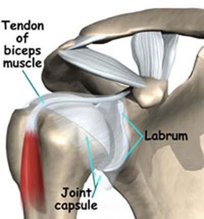 torn Shoulder labrum graphic