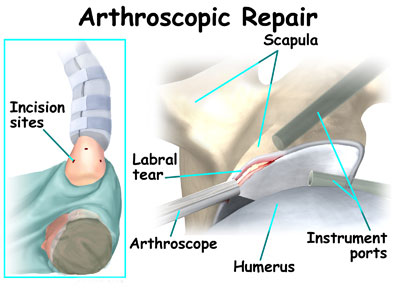 surgery for torn shoulder labrum graphic