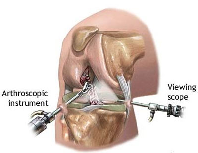 graphic simulation of a meniscus surgery
