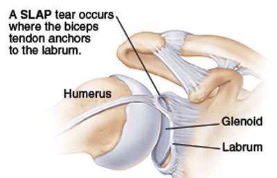 slap torn shoulder labrum graphic