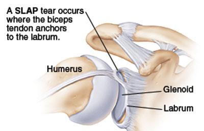 slap torn shoulder labrum graphic