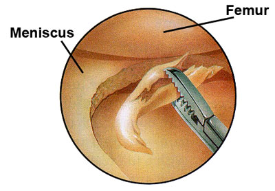 microscopic view of meniscus surgery