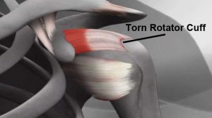 rotator cuff surgery location