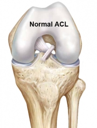 normal acl before surgery