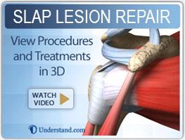 Slap-lesion-repair