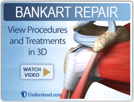 bankart-repair