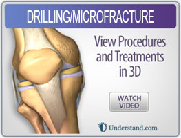 drilling-microfracture