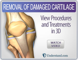 removal-of-damaged-cartilage