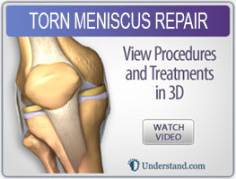 torn-meniscus-repair
