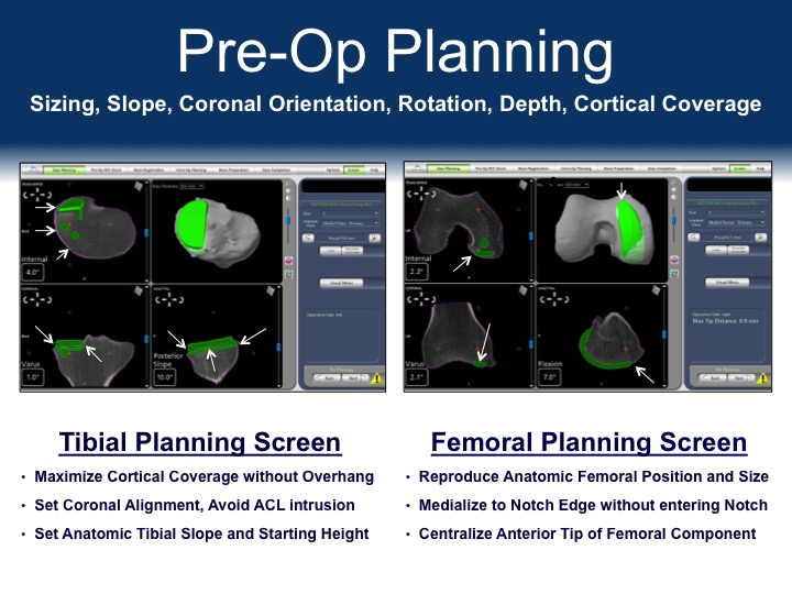 Dr. Frederick Buechel Preoperative Planning