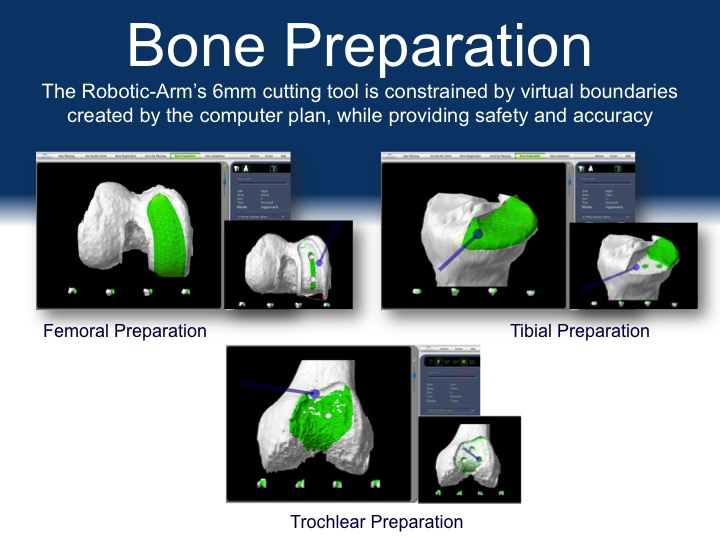 Bone Preparation for Robot Assisted Partial Knee Replacement Surgery