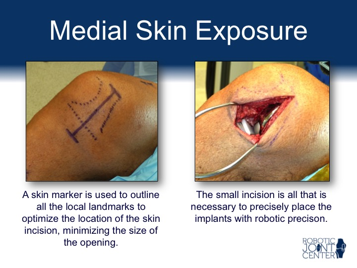 Medial Skin Exposure for Robotic Partial Knee Replacement Surgery