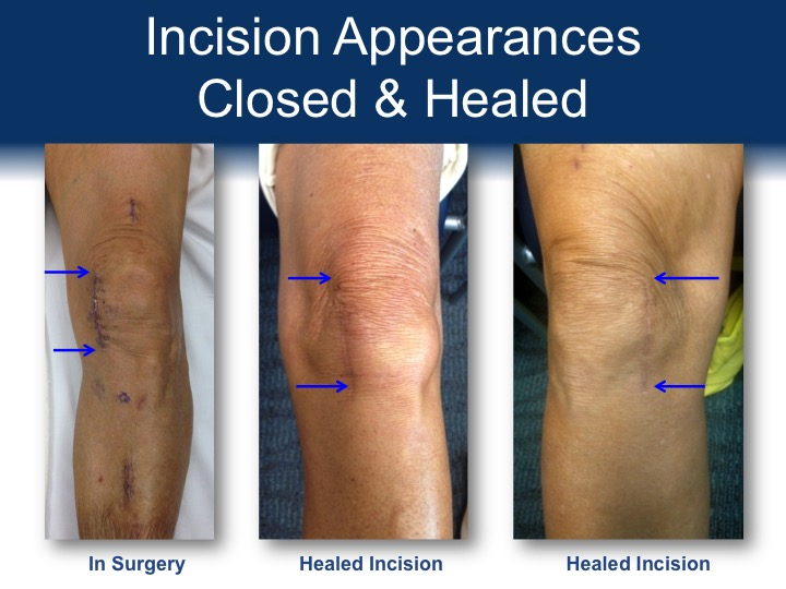 Appearance of Incisions Post Partial Knee Replacement Operations