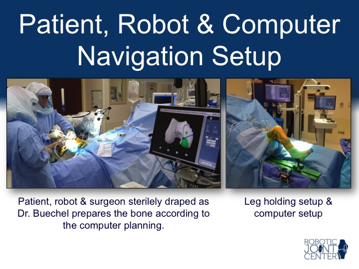 Patient & Robotic Operating Room Setup