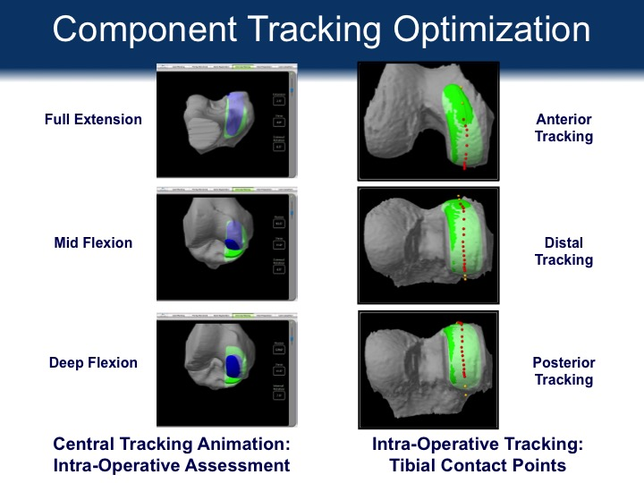 Component Tracking Optimization