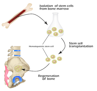 Stem cell therapy diagram