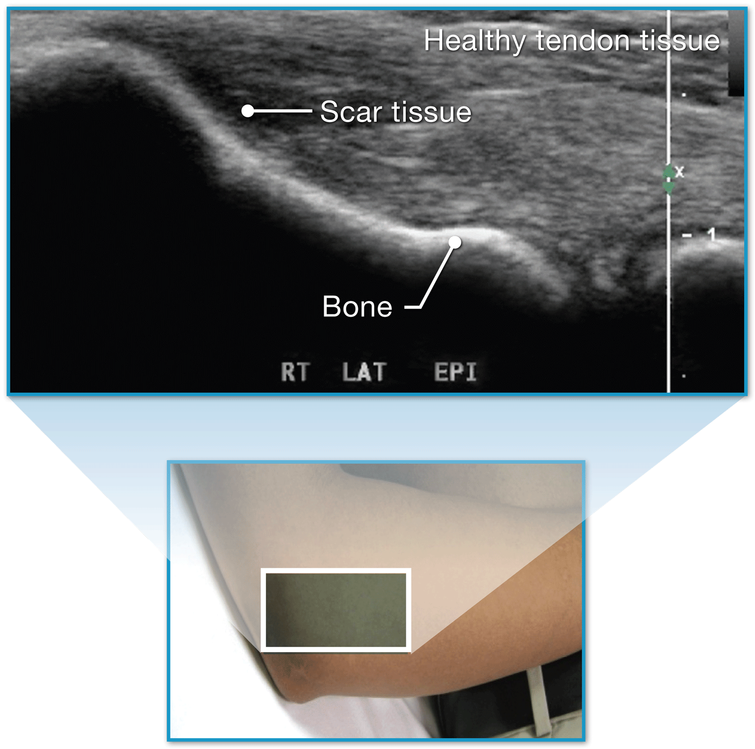 TX Procedure - Tendonitis Tennis Elbow with ultrasound